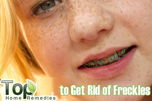 Home-made Remedies and Natural Treatments to Remove Freckles