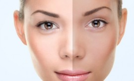 Top 10 Best Natural Tips for Skin Fairness and face whitening