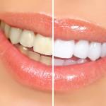 Teeth-Whitening-Tips