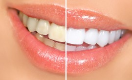 Top 8 Best and Most Effective Natural Ways of Teeth Whitening