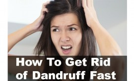 DIY Top 10 Best and Efficient Natural Ways to Get rid of Dandruff