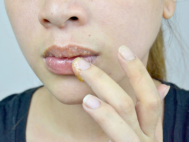 diy-natural-tips-and-home-remedies-for-pink-Lips (2)