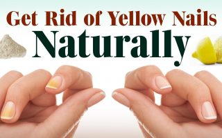 yellow nail remedies