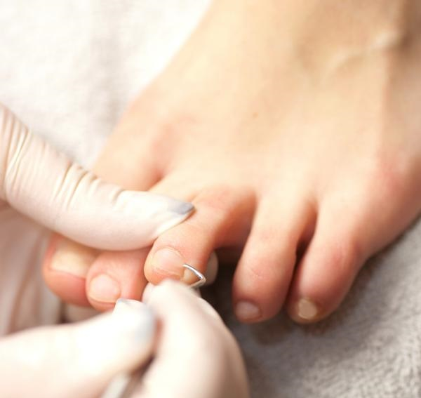 removing cuticles around nails of the feet