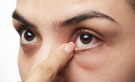 Twitchy Eyelids - Causes, Cure, And Prevention