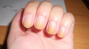 yellow nails remedies